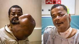 Sju kilos tumör opererades bort på kristna hjälpbåten Africa Mercy